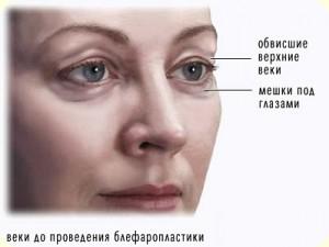 blefaroplasty1-1