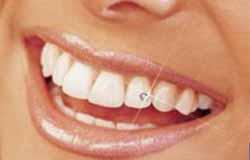Современные средства для чистки зубов – еще одна разновидность зубной щетки