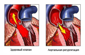 aortic-valve-regurgitation