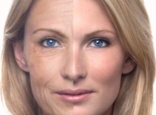 Что такое биоревитализация кожи