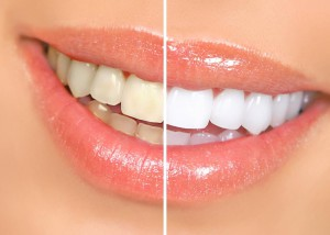 lazernoe-otbelivanie-zubov-2