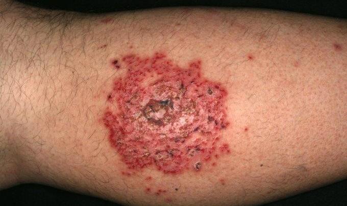 Экзема: Симптомы и лечение заболевания