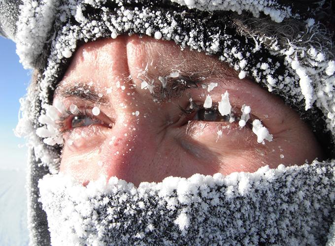 Общие сведения о холодовой аллергии