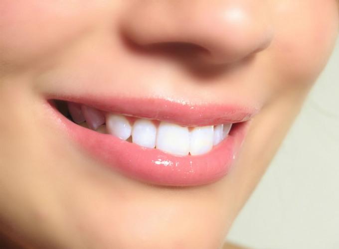 Стоит ли отбеливать зубы в клинике?