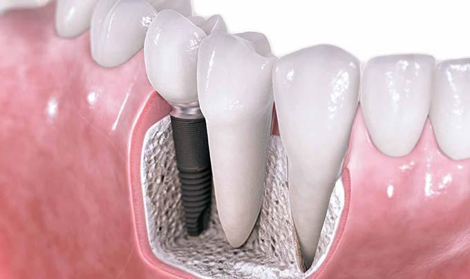 Имплантация зубов — это эффективно