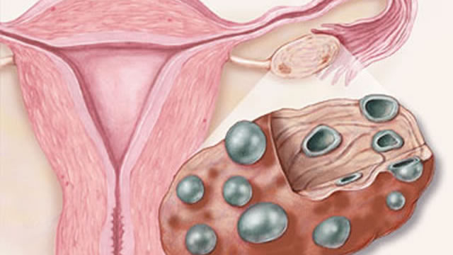 Поликизтоз яичников, причины и лечение