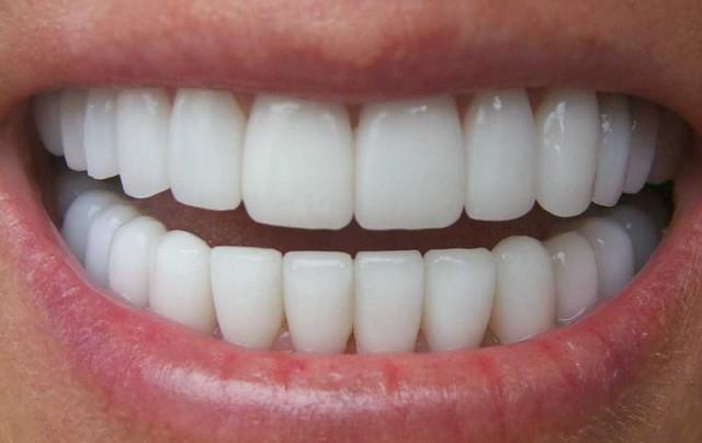 Реконструкция зубов