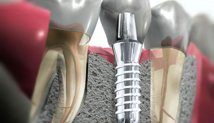 Имплантация зубов: суть метода и возможные противопоказания